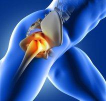 Csípőprotézis műtét utáni rehabilitáció